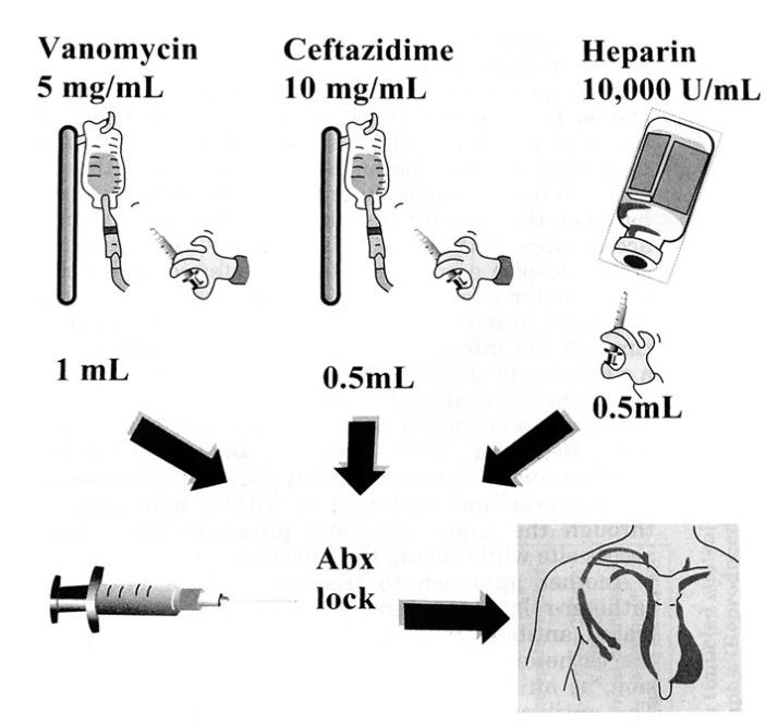 Kombinacije-Ab-plus-heparin
